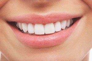 Vibrant Smile