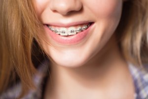 girl showing dental braces.