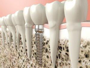bone graft implant