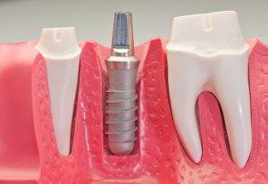 gums dental implant